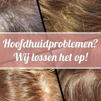 Overmatige schilvering, (seborroïsch) eczeem of psoriasis? Joolz Hairstyle lost het op!